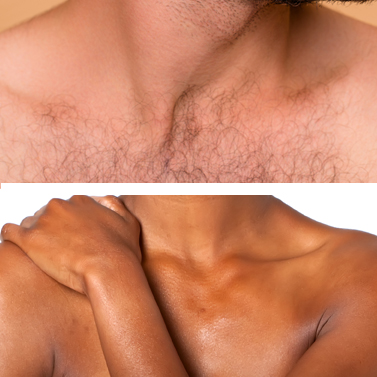 chest and stomach hair removal